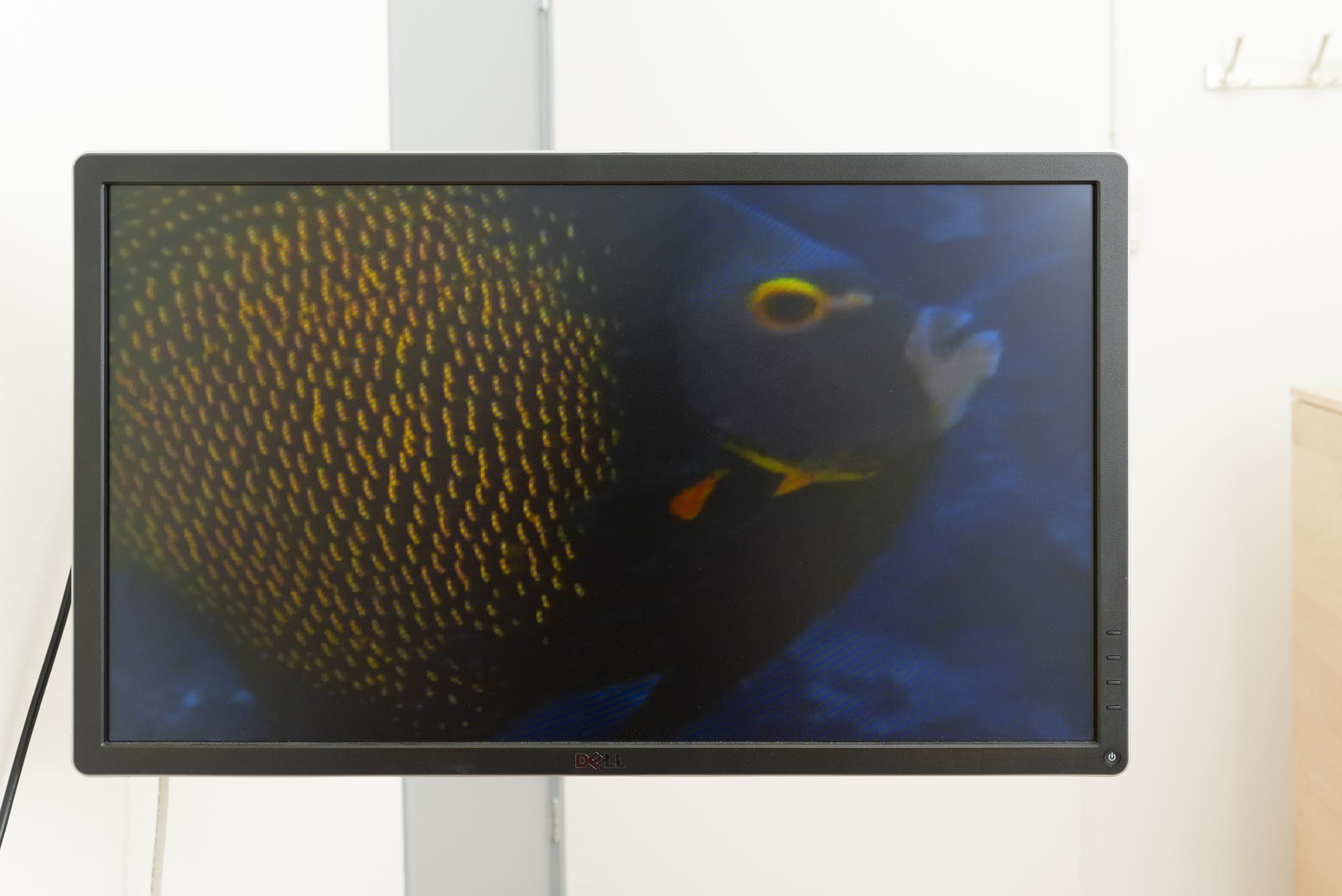 beeldscherm tijdens seksonderzoek, natuurflims worden getoond om af te koelen