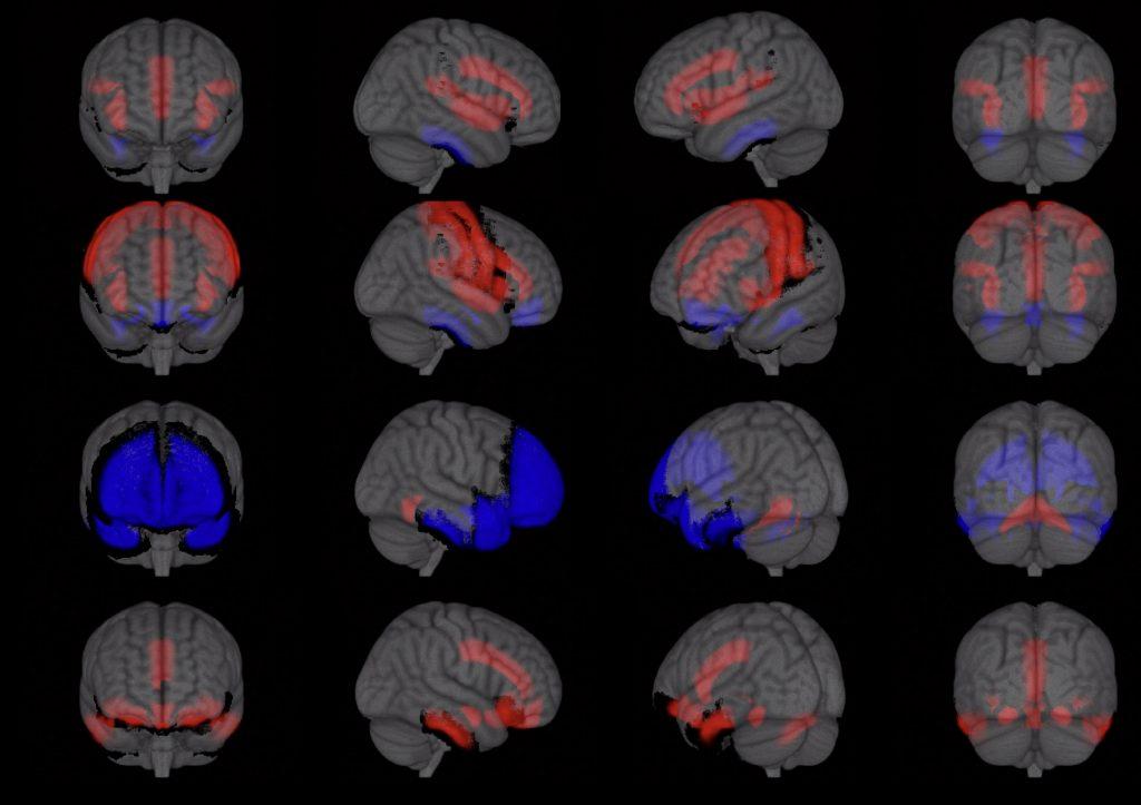 scans van hersenactiviteit tijdens verschillende stadia van seks